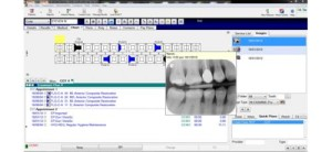 xray-software
